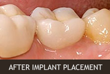 After Implant Placement